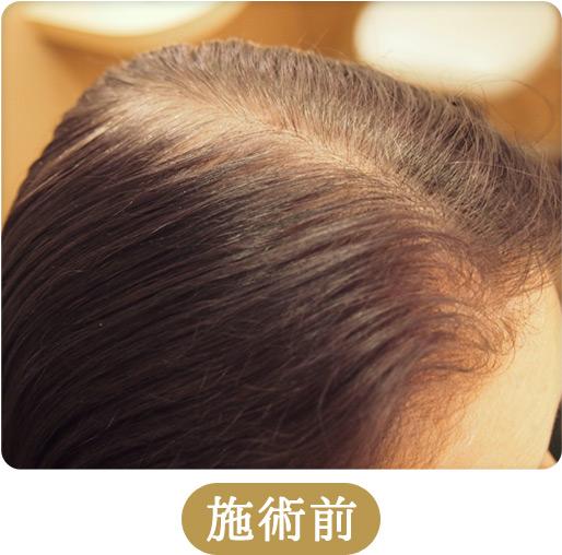 育毛・発毛・薄毛対策メニュー「ドクタースカルプ」施術前