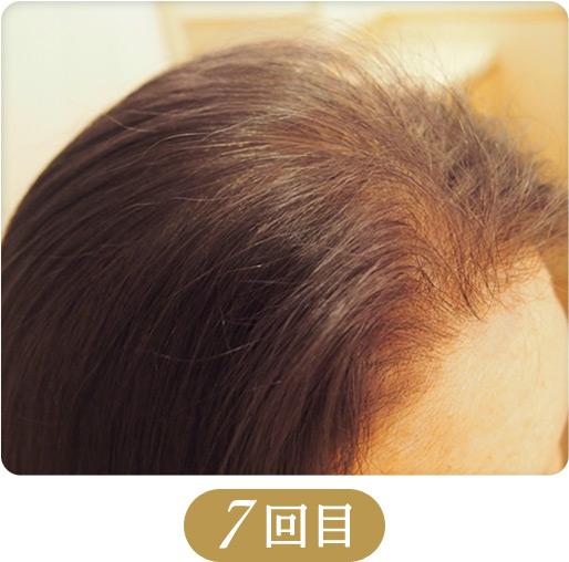 育毛・発毛・薄毛対策メニュー「ドクタースカルプ」7回目の施術