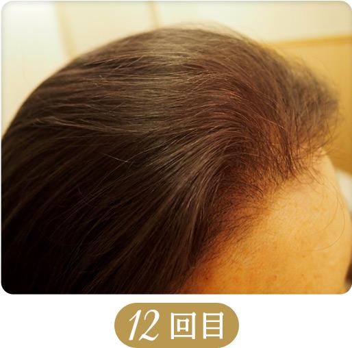 育毛・発毛・薄毛対策メニュー「ドクタースカルプ」11回目の施術