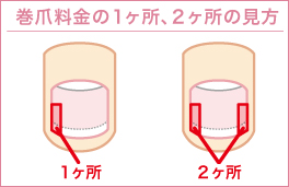 巻き爪補正ペディグラス 巻き爪1ヶ所、2ヶ所の見方