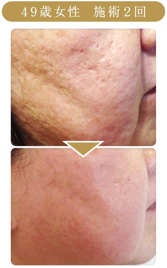 49歳女性、ハーブピーリング2回の施術効果
